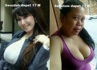 Malinda Dee Operasi Plastik